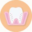 歯を失う原因の第一位だからこそ徹底的な予防と治療で歯を残します。